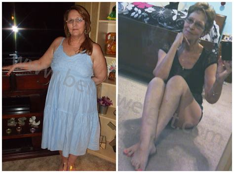medicare and weight loss surgery picture 1