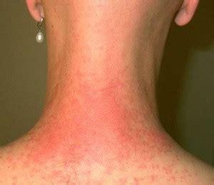 iching skin remedies picture 7