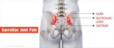 si joint pain picture 1