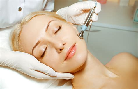 white hair removal picture 7