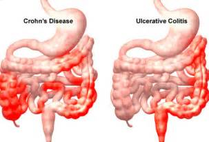 symptoms of inflammation of the colon picture 6