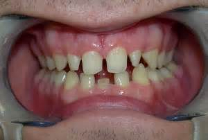los angeles tooth crown picture 9