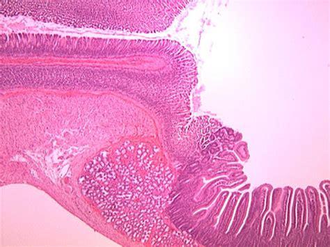 mastram digestive picture 15