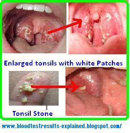 ear ache patch picture 6