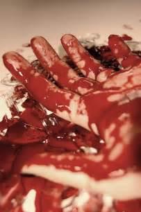 el bleeding picture 7