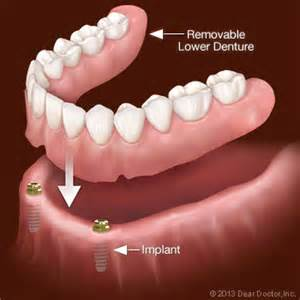 false teeth permanent picture 14