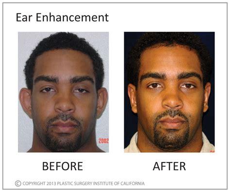 plastic surgery male enhancement picture 2