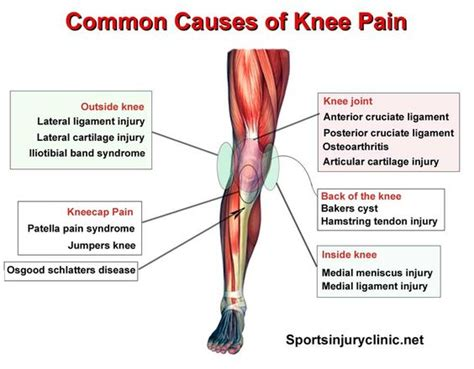 what causes pain in knees picture 2