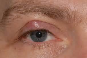 kuliti remedy picture 3