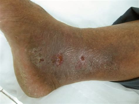 skin ulcer pictures picture 7