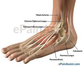 ankle joint effusion and ruptured achilles tendon picture 5