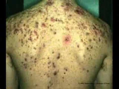 acne treatment reviews picture 6