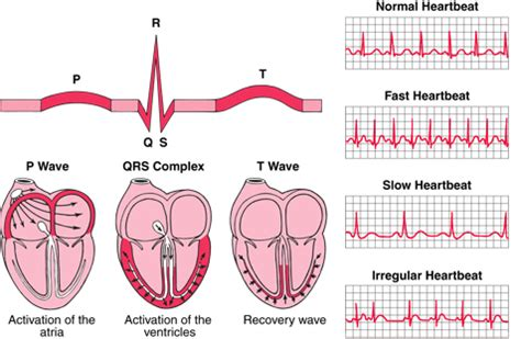 abnormal ekg and high blood pressure picture 5