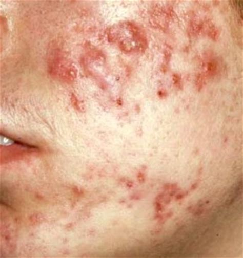 acne free for your face picture 7