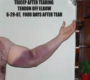 muscle tear heal time picture 13