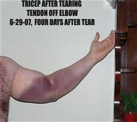 muscle tear heal time picture 5