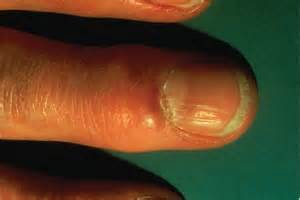 steaky puse inside the fingers skin picture 2