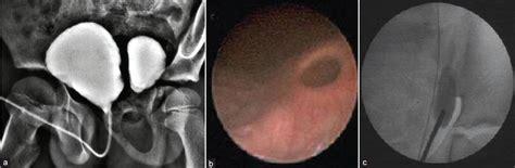 bladder diverticula picture 5