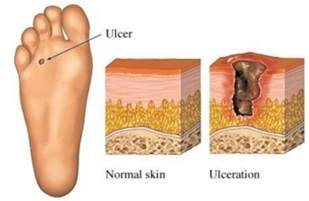 does heel ulcers heal on diabetics picture 1