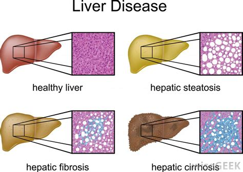 chronic liver disease - jaundice picture 1