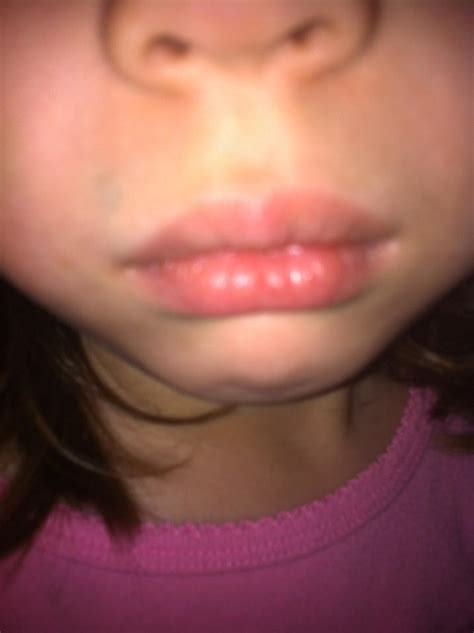Lip allergies picture 10