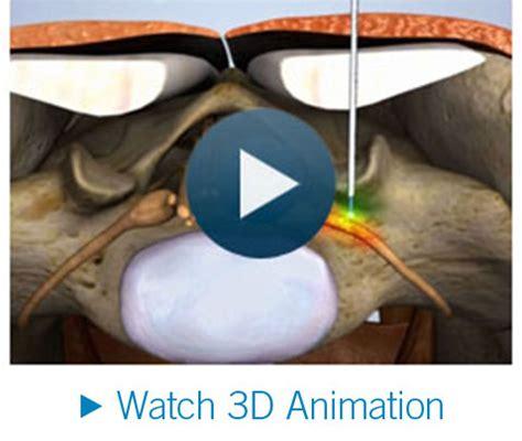 facet joint nerve eblasion picture 15