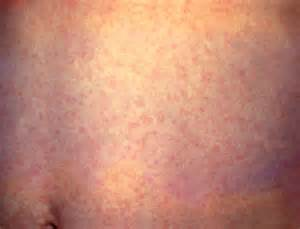 viral skin infections picture 5