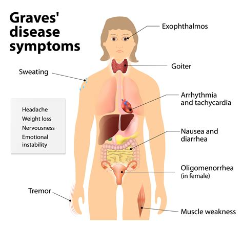 hyperthyroidism grave's disease and taking picture 1