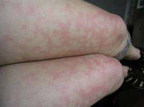 bloched skin picture 5