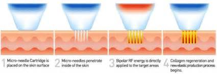 Laser surgery for acne picture 2