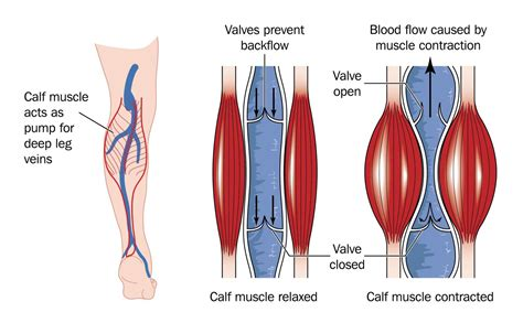 medication to increase blood flow to legs in picture 1
