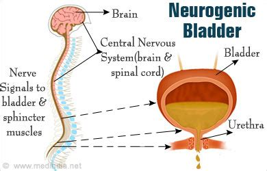 neurogenic el and bladder picture 6