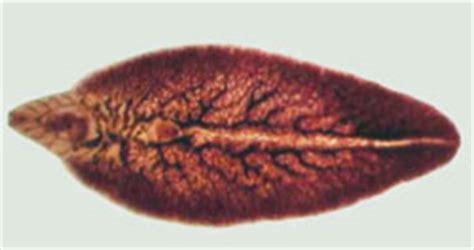 liver fluke picture 6