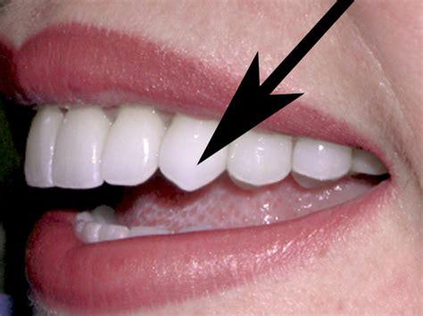 cuspid teeth picture 9