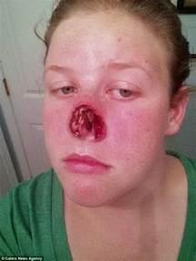 acne records picture 9
