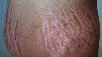 c4 what causes stretch marks picture 5