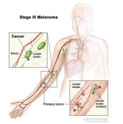 autoimmune axillary pain picture 10