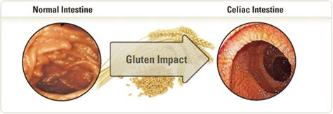 wheat free diet benefits 2013 picture 2