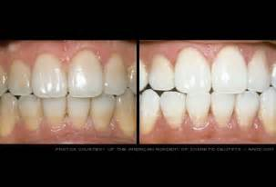 teethwhiten picture 2