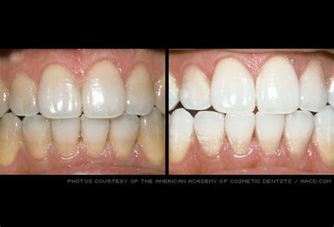 chandni whitening cream ni nini picture 11