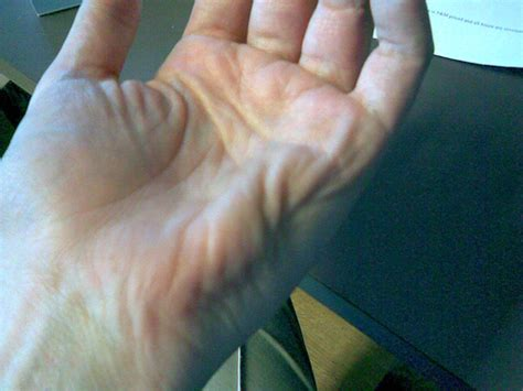 causes for muscle cramps in hands picture 1