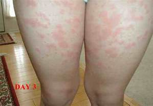 side effects of hives picture 17