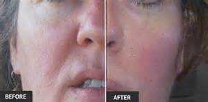 an skin tightening real reviews picture 5