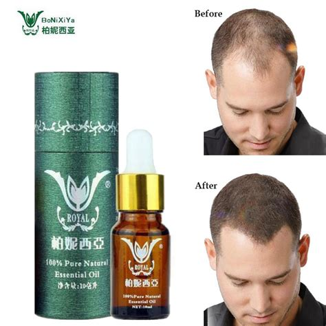 dramatic hair growth products picture 13