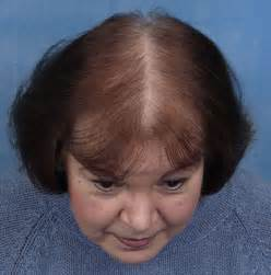 testosterone help hair loss picture 1