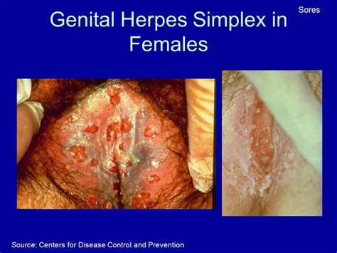 foods that tame vaginal herpes picture 10