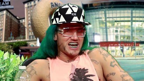 white gold teeth picture 9