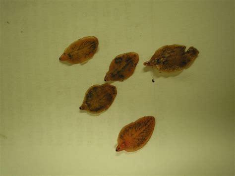 liver flukes picture 10