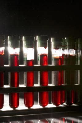 high liver enzymes and blood in urine picture 8
