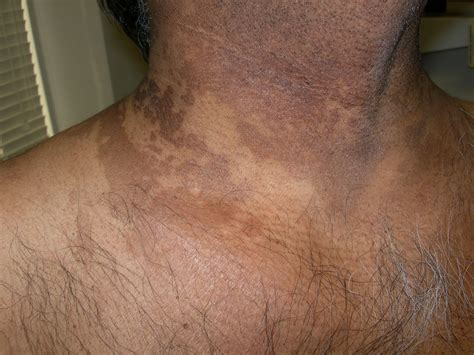 white spots on skin that cause fungi picture 5